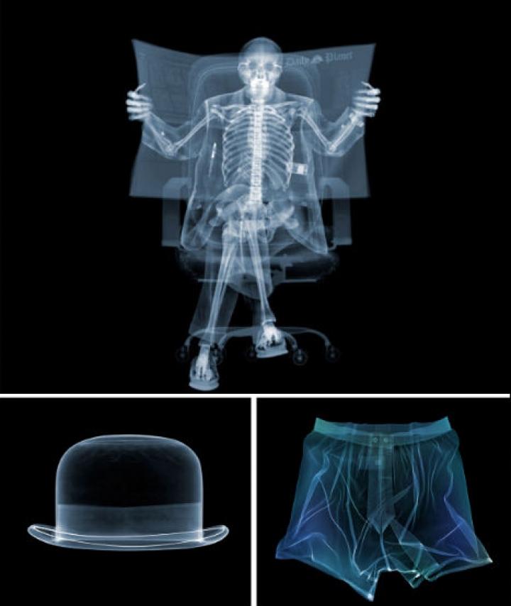 x-ray-φωτογραφία-1